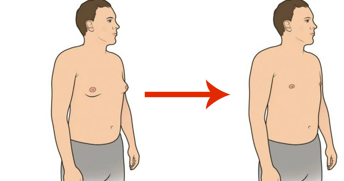 ridurre seno maschile